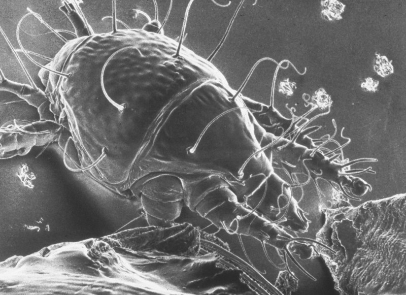 Tracheal mite as seem in a scanning electron micrograph (SEM).