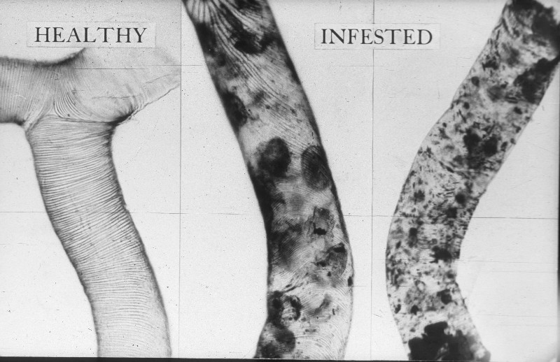 Healthy and infested tracheae tubes